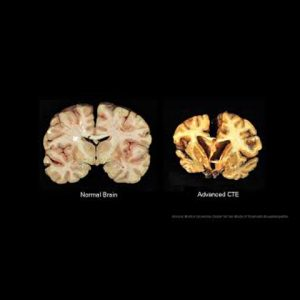 110 out of 111 former NFL Player's Brain's have CTE. Now what???